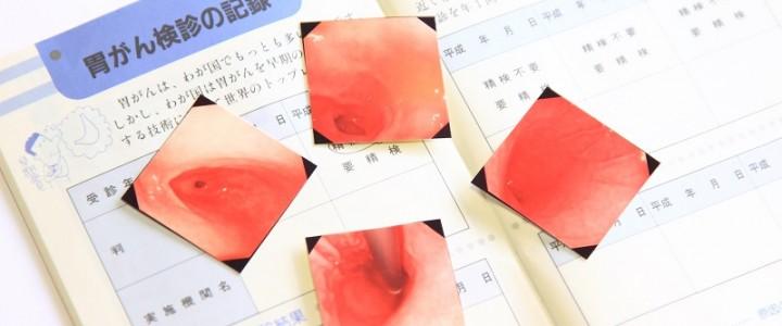 内視鏡検査で胃がん・大腸がんの早期発見を目指しましょう