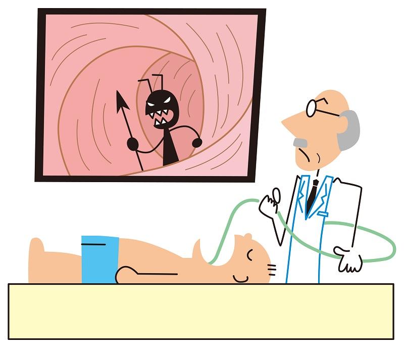 胃カメラ検査をしているイラスト